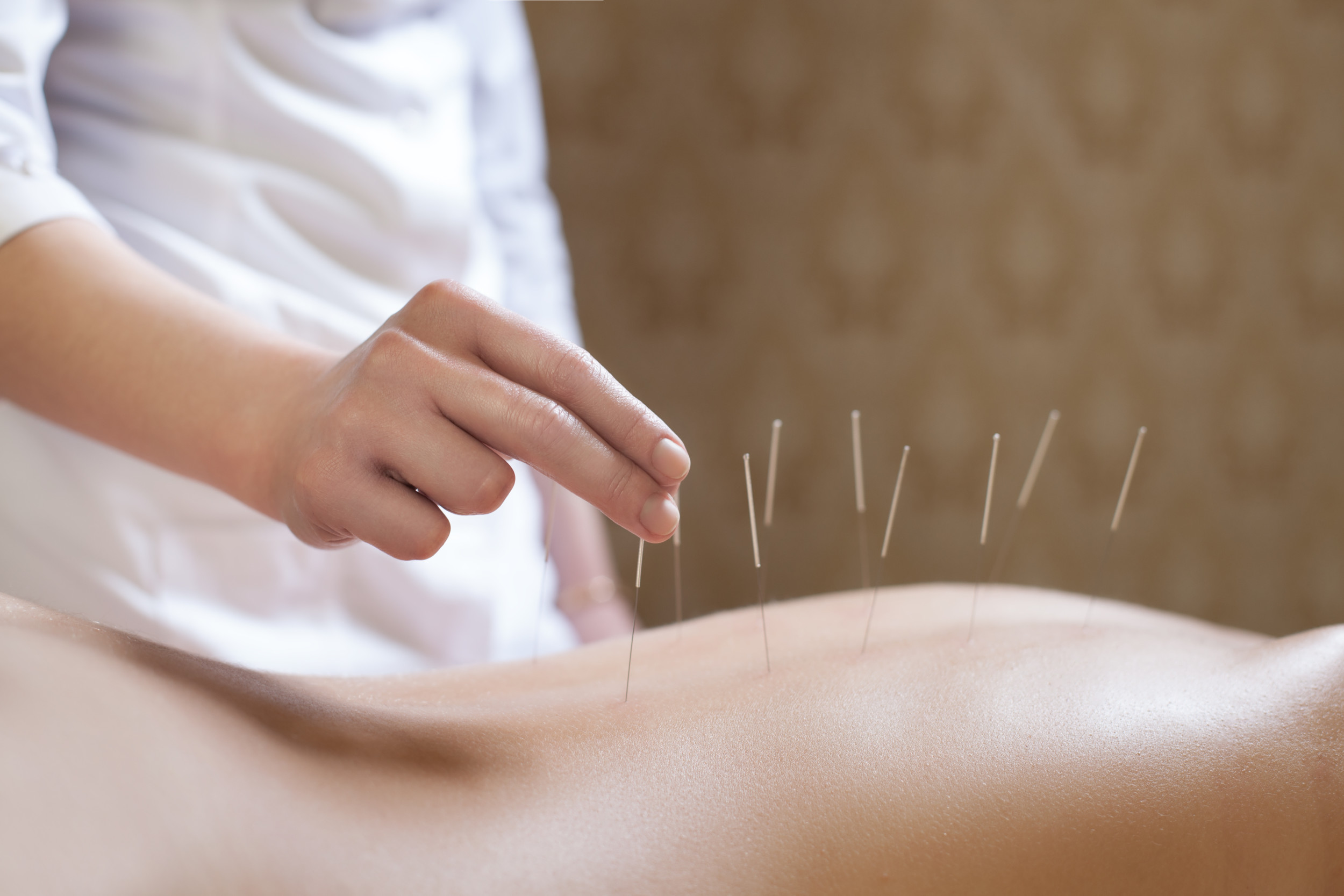 acupuncturist doctor makes a therapy for woman;